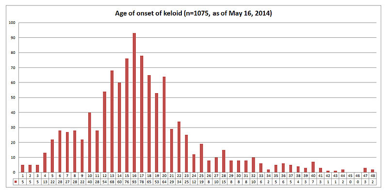 Age of onset of Keloid among 1075 responders