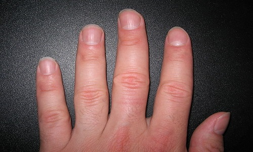 Why Do Fingernails Have Ridges?