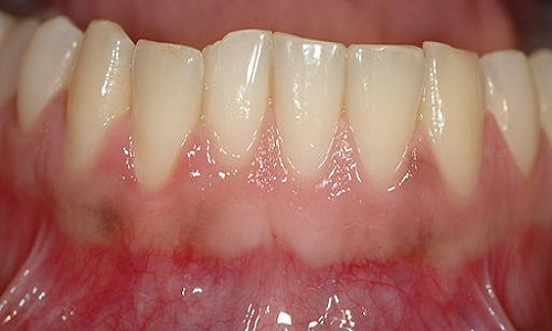 Why Do Gums Bleed When Brushing?