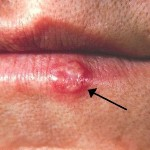Why Do Fever Blisters Occur?