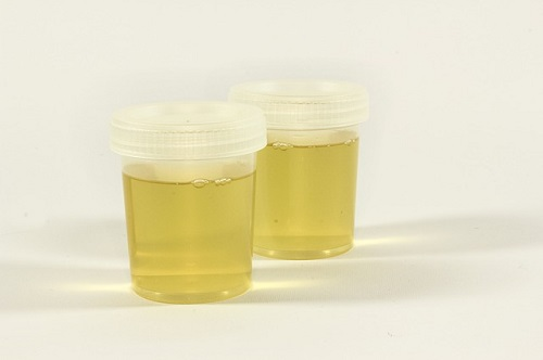 What does urine organic acids test for